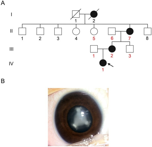 The family with congenital nuclear cataract.(A) Pedigree of the Chinese family with autosomal dominant nuclear cataract. Squares and circles indicate males and females, respectively. Black symbols represent individuals with a cataract phenotype and open symbols represent unaffected individuals. The proband is marked by an arrow. The numbers of the participants in this study are indicated by red color. (B) Lens picture from the proband showed the opacities located in the lens nucleus and that the sutures were also involved (right eye).