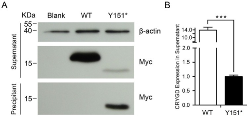 Western blot analysis of CRYGD over-expression in HEK293T cells.(A) The truncated CRYGD showed decreased solubility. In the supernatant, the mutant protein was truncated and was present in much lower amounts than the wildtype. In the precipitant, there was more mutant protein and the wildtype was not detected. (B) Quantification by band densitometry indicated the prominent reduction of mutant CRYGD in the supernatant (p<0.05).