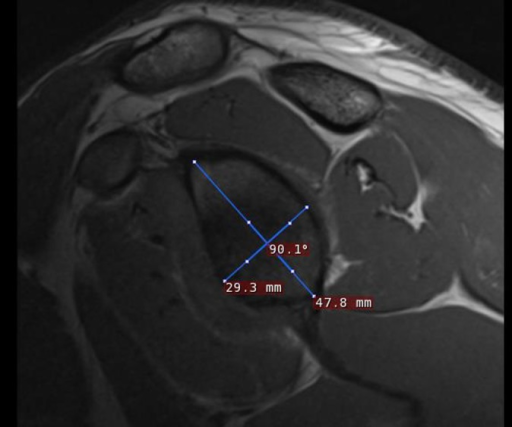 Example of measurements made across the face of a glenoid on a T1-weighted MRI scan.
