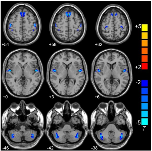 Compared to HCs group,VMHC in superior frontal gyrus (SFG), superior temporal gyrus (STG), posterior cerebellar lobe (CePL), postcentral and precentral gyri was observed in LOD. Blue color represents reduced VMHC value in LOD. The numbers at the down left of each image refer to the z-coordinates in Montreal Neurological Institute template. The threshold was set at a corrected P < 0.001 (corrected with P < 0.01 for each voxel and cluster volume ≥55 voxels) and the t-score bar is present at the right-side. Notes: HCs, Healthy Controls; VMHC, Voxel-Mirrored Homotopic Connectivity; LOD, Late-Onset Depression.