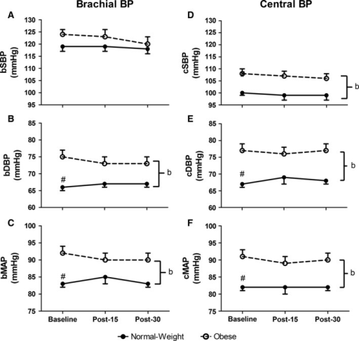 Brachial (A–C) and central (D–F) blood pressure (BP) variables at baseline and at 15‐ and 30‐min postmaximal exercise. bSBP, brachial systolic blood pressure (Panel A); bDBP, brachial diastolic blood pressure (Panel B); bMAP, brachial mean arterial pressure (Panel C); cSBP, central systolic blood pressure (Panel D); cDBP, central diastolic blood pressure (Panel E); cMAP, central mean arterial pressure (Panel F). #group difference at baseline (P < 0.05); bmain effect of group (P < 0.05). Values are mean ± SE.