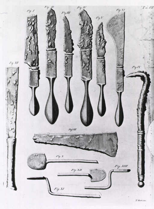 <p>Various scalpels or knives, spatulas, and a hook used in the removal of stones.</p>
