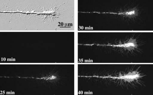 Progressive staining of the distal axon after labeling of cell body–derived  vesicles. DIC and fluorescence images of the distal  axon at different times  (marked in minutes) after  local labeling of cell body– derived vesicles with DiIC12  molecules. The length of the  axon was ∼1,900 μm. DiIC12-labeled vesicles gradually accumulated at the central domain of the growth cone. The  delay between the staining of  the cell body and accumulation of the vesicles at the distal axon is likely to reflect the  time required for the fast axonal transport of the vesicles.  Notice a gradual increase in  the diffuse staining of the  vesicle-free peripheral growth  cone.