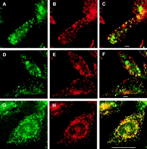 Double-label immunofluorescence with internalized GLUT4 and transferrin. Cells were incubated  with both Texas red–coupled  transferrin and fluoresceinated 9E10 at 15°C for 2.5 h,  and then either processed  immediately for microscopy  (A–F) or shifted to 37°C for  10 min followed by processing for microscopy (G–I). A,  D, and G, FITC-9E10; B, E,  and H: Texas red–transferrin; and C, F, and I: merged  images. Areas of overlap are  indicated in yellow. Bars:  (A–F) 2 μm; (G–I) 10 μm.