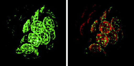 Confocal image of Physcomitrella patens protoplast expressing PpFtsZ1/GFP fusion protein. GFP fluorescence forms a reticulated fibrillar network (a plastoskeleton) within the plastid (left). Red autofluorescence defines the individual chloroplasts (right). Micrograph courtesy of Justine Kiessling.