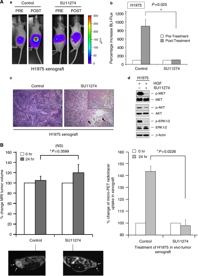 MET inhibition with SU11274 successfully induced in vivo tumour response in EGFR-TKI-resistant H1975 cells in murine xenograft model assessed by multimodal molecular imaging. (A) In vivo tumour xenografts for H1975-luc cells were established as described in the Materials and Methods section in 6-week old nude mice. Daily SU11274 (100 μg per xenograft) treatment was administered to the H1975-luc lung cancer tumour xenografts in nude mice as described. DMSO diluent control was included for comparison. Imaging was performed using a Xenogen IVIS 200 System cooled CCD camera at indicated times. (a) Representative BLI digital pictures of nude mouse from each of the treatment conditions are illustrated. SU11274 significantly inhibited L858R/T790M-EGFR expressing H1975-luc in vivo tumorigenesis within the treatment durations (6 days). (b) Mean values of relative BLI flux of each group are plotted here (H1975-luc). N=4 per treatment group. Error bar, s.e.m. (*), P=0.025 for H1975-luc. Representative tumour xenograft micrographs from H1975-luc (c) cell line under haematoxylin and eosin (H&E) staining are also shown here for the control and SU11274 treatment animals. Magnification × 100 (inset, × 200). (d) SU11274 inhibited HGF-driven signalling activation in H1975 cells. H1975 cells were stimulated with HGF (50 ng ml−1, 15 min) and inhibited by MET inhibitor SU11274 (1 μM, 4 h) in vitro, and analysed with 7.5% SDS–PAGE and immunoblotting with the indicated antibodies as described in Materials and Methods. (B, C) Magnetic resonance imaging (MRI) and microPET molecular imaging studies of MET inhibition of H1975 in vivo xenograft. H1975 in vivo xenografts were established as above for treatment with either diluent control (N=2) or SU11274 (N=2). The nude mice with H1975 xenografts were subjected to MRI and microPET imaging as described in the Materials and Methods section at 0, and 24 h with the MET inhibitor SU11274 treatment or diluent control. (B) Examples of the transverse sections of high-resolution MRI images of the tumour xenografts at baseline between the two treatment groups were shown here for illustration (left). The MRI tumour volumes were analysed digitally with the calculated tumour volume changes at the indicated time intervals (0 and 24 h) plotted. Comparing with baseline, the control xenograft tumour volume increased by 105.1±8.3% at 24 h, whereas the SU11274-treated xenografts increased by 120.2±16.2% at 24 h. The MRI tumour volumes changes at 24 h post-treatment between the two groups were not statistically significant (*P=0.360). Error bar, s.e.m. Quantitative microPET radiotracer uptake of the H1975 tumour xenografts at 60 min of radiotracer tail-vein infusion in the animals' pretreatment baseline (0 h) and post-MET-TKI treatment at 24 h is shown graphically (right). N=2 in each treatment group: Control and SU11274. Error bar, s.e.m. Representative co-registered pictures of the microPET/MRI (low-resolution) images of each xenograft from the two treatment groups are shown in (C). SU11274 induced early tumour metabolic response, as early as 24-h post-TKI treatment, with statistically significant inhibition of glucose metabolism as evident in the decrease in microPET uptake signal intensity by 45% (P=0.0226) in SU11274-treated xenografts, when compared with diluent control. The degree of increase in the glucose uptake in the H1975 tumour xenograft in diluent control is also consistent with the average rate of the xenograft growth (increase of 50.8% BLI flux per day) as reflected in the bioluminescence imaging.