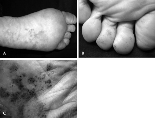(A) Grouped, punctate, erythematous macules on the left sole. (B) Similar lesions on toes. (C) Close-up view of the lesions on left sole.