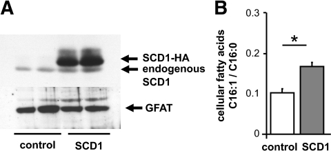 Characterization of an SCD1 overexpression model in HEK293 cells. HEK293 cells were stably transfected with HA-tagged human SCD1. A: Endogenous SCD1 and overexpressed SCD1-HA protein expression is visualized by Western blotting using an anti–human-SCD1 antibody. The strongly overexpressed SCD1-HA is visible above the endogenous SCD1. The cytosolic protein glutamine:fructose-6-phosphate aminotransferase was used as a loading control. B: Analysis of the cellular fatty acid composition revealed a significantly higher fatty acid ratio of SCD1 product to substrate (C16:1/C16:0) in SCD1 than in control cells. Means ± SE of n = 4 are displayed. *Significantly different between the groups, P < 0.01.