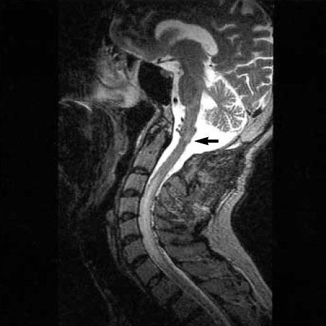 T2-weighted sagittal MRI shows hyperintense lesions consistent with edema in the lower brainstem (arrow) and cervical spinal cord.