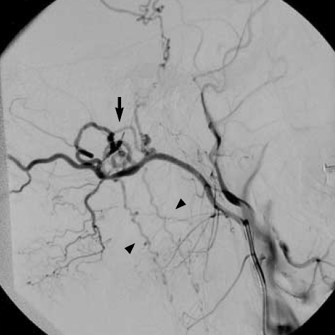 Selective right external carotid artery angiogram (lateral projection) shows a dural arteriovenous (arrow) fistula fed by the branches of the occipital artery, and draining into the perimedullary veins (arrowheads) around the brainstem and cervical spinal cord.