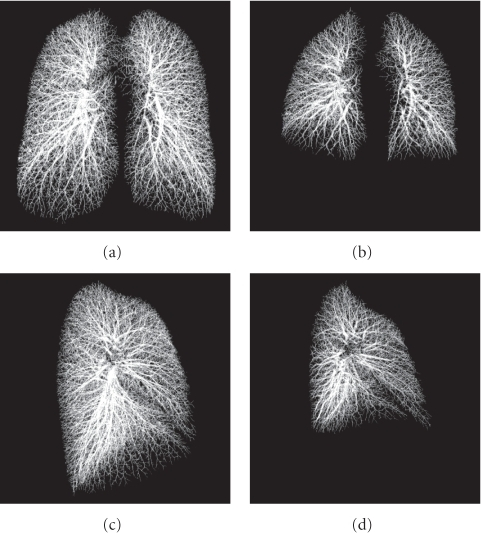 Two examples of segmentation results. (a) and (c) are the results from a TLC scan. (b) and (d) are from the associated FRC scan of the same subject. All images are shown at the same scale. Note the breathing-related changes of lung vasculature caused by regional lung parenchymal expansion between the TLC and FRC lung volumes.