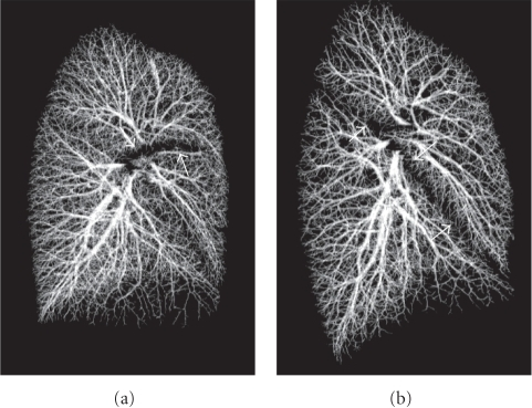 The extracted vascular tree of the right lung. Horizontal fissure is recognizable by the sparse region of the vascular tree in (a). Similarly, void region of the vascular tree describes the existence of oblique fissure in (b).