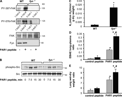 Fyn is required for limiting the increase in lung microvascular permeability. (A and B) Fyn deletion prevents PAR1 activation of FAK phosphorylation. Lungs from C57BL/6 (WT) and fyn −/− mice receiving control or PAR1 peptide (1 mg/kg) for indicated times were homogenized, and proteins immunoblotted with anti–phospho-Y397-FAK, anti–phospho-Y576-FAK, and anti-FAK Abs (A) or and anti–phospho-Y419Src and anti-cSrc Ab (B) to assess FAK (A) and Src (B) phosphorylation. Immunoblot with anti-Fyn and anti-cSrc show that deletion of Fyn (A) did not alter the expression of cSrc (B). Data representative of three independent experiments. (C) Changes in lung microvascular permeability in fyn−/− mice. In isogravimetric lungs intravascular pressure was raised by 10 cm H2O for 20 min and microvessel filtration coefficient (Kf) was calculated from the slope of the weight gain function normalized by lung dry weight, as described in Materials and methods. Plot gives mean ± SD of four experiments. In each experiment fyn −/− lung was paired with WT lung. * indicates significance (P < 0.05). (D–E) PAR1 agonist peptide augments the increase in lung microvascular permeability in fyn−/− mice. PAR-1 peptide (1 mg/kg) or control peptide was injected together with Evans blue albumin retroorbitally into mice (WT, grey column; fyn−/−, black bar). After 30 min, Evans blue albumin extravasation (EBAE) from lungs or plasma (D) and lung wet/dry weight ratio (E) were determined as described in Materials and methods to quantify lung microvascular protein permeability and lung edema formation, respectively. Data represent mean ± SD of four individual experiments where fyn −/− lungs were paired with WT lungs. * indicates significance from appropriate control peptide group (P < 0.05); # indicates significance from WT mice after PAR1 challenge (P < 0.05).