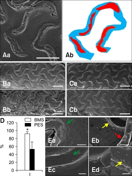 Scanning electron microscopy photographs of BMS and PES in rat aorta. (A) Representation of strut area (blue) and uncovered area (red). (B) BMS and PES at 2 wk and (C) at 4 wk. (D) The covered stent ratio at 4 wk after stent implantation. (E) High magnification. Endothelial cells (green arrow), inflammatory cells (yellow arrow), and stent strut (red arrow). *p < 0.05. Ba and Ea: BMS 2 wk, Bb and Eb: PES 2 wk, Ca and Ec: BMS 4 wk, Cb and Ed: PES 4 wk. Scale bars = Aa: 500 µm, B and C: 1 mm, Ea and b: 100 µm, Ec and d: 50 µm.