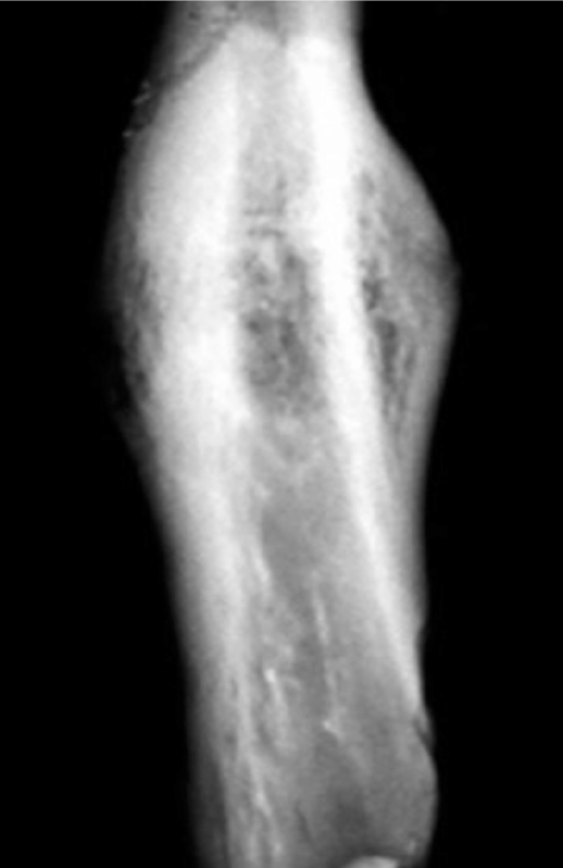 Bone healing 28 days after creation of a simple fractur | Open-i