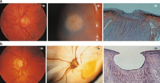Normal optic disc. a Normal optic disc in a healthy person (left), in the eye of a cadaver (middle), and a histological section (right). b Glaucomatous atrophy of the optic disc. The eye of the patient is shown on the left, of a cadaver in the middle and a histological section in the right
