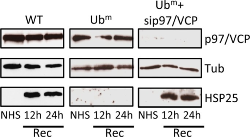 p97/VCP is required to knock down HSP25 accumulation in Ubm heat-shocked cell line. WT and Ubm cells were submitted or not (NHS) to heat shock, followed by different conditions of recovery (Rec) at 37°C. Ubm HDAC6–expressing cells were transfected with a siRNA against p97/VCP. HSP25 expression was analyzed by Western blot with an anti-HSP25 antibody. The efficiency of the sip97/VCP knockdown was assessed by Western blot using an anti-p97/VCP antibody. Tubulin was used as loading control.