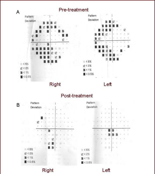 Visual impairment of the patient before and after treatment.Visual field examination was performed at day 2 when the patient was admitted to the hospital. Right homonymous hemianopia was evident in both eyes pre-treatment (A). After 2 weeks of treatment, the patient's visual deficit had fully recovered (B).