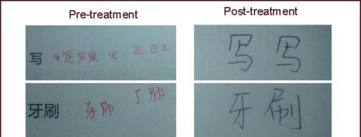 The patient was asked to copy the Chinese words shown on the left.The patient exhibited difficulty before treatment, but not after treatment.