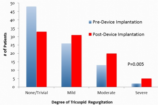 Tricuspid Valve Regurgitation Pre- and Post-Permanent Device Implantation. There was a significant increase in the degree of tricuspid regurgitation from pre- to post-device (permanent pacemaker, implantable cardiac defibrillator or biventricular pacemaker] insertion (p=0.005).