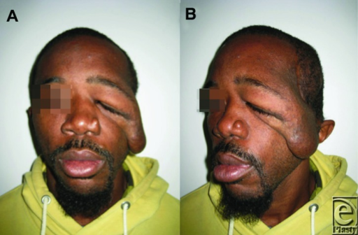 Preoperative (a and b) photographs demonstrating a drastic improvement in facial appearance.