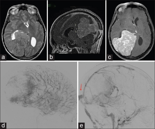 "Axial T2-weighted (a) brain magnetic resonance imaging (MRI) showing a giant parieto-temporal meningioma enhancing after Gadolinium administration (c). Sagittal MRI venous angiography (b) evidenced an abnormal superior sagittal sinus drainage. Preoperative angiography with embolization of the lesion (d). During venous phase of angiography, the abnormal drainage of superior sagittal sinus like ""sinus pericranii"" was clearly confirmed (e, red arrow)"