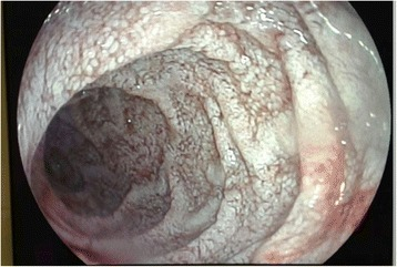 Endoscopy. White lesions compatible with diffuse intestinal lymphangiectasia