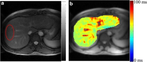 T1ρ MRI weighted image corresponding to TSL = 30 ms (a) and map (b) of healthy human liver. T1ρ map of segmented liver is color overlaid on anatomical image. T1ρ value in ROI marked on weighted image (a) is 55.6 ± 2.3 ms