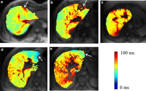 T1ρ maps of healthy human liver (a) and patients liver corresponding to fibrosis stage of 1, 2, 3 and 4 respectively. Maps of segmented liver are color overlaid on anatomical image. White arrows point to the areas with possible field inhomogeneity artifacts