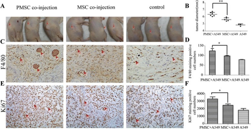P-MSCs promote tumor growth in vivo. a Tumor promoting effects of P-MSCs in a xenograft mouse model. PMSC + A549, n = 6. 2 × 106 A549 cells and 2 × 105 exosomes-treated MSCs were injected. MSC + A549, n = 4. 2 × 106 A549 cells and 2 × 105 DF12-treated MSCs were injected. A549, n = 3, only 2 × 106 A549 cells were injected. b the tumors in each group were dissected and tumor diameters were measured at 2 weeks after subcutaneous cell injection. c The macrophage infiltration was examined by F4/80 immunohistochemical staining of the tumor tissues harvested 2 weeks after A549 cell inoculation. Representatives of F4/80 staining from each group are shown (magnification 200×). d F4/80 + macrophages were quantitated and the data represent the mean number of F4/80+ macrophages per 200 × field (three fields per group). e Tumor cell proliferation was examined by Ki67 immunohistochemical staining of the tumor tissues. Representatives of Ki67 staining from each group are shown (magnification 200×). f Ki67 staining-positive cells were quantified and the data represent the mean number per 200 × field (three fields per group)