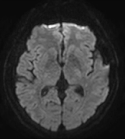 Diffusion MRI Scan At 25 Days After The Endovascular Treatment Patient Presented Intermittent Right