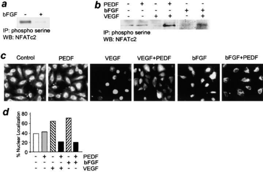 NFAT deactivation by PEDF. (a) NFAT dephosphorylation by bFGF. Cell extracts of bFGF-induced human microvascular ECs (5 ng/ml, 15 min) were precipitated with phosphoserine antibody and analyzed by immunoblotting with NFATc2 antibody. Note the decreased NFATc2 phosphorylation in the presence of bFGF. (b) PEDF restored NFATc2 phosphorylation in activated ECs. VEGF- or bFGF-stimulated ECs were treated with PEDF (10 nM, 15 min). Note the decrease in phospho-NFATc2 by angiogenic stimuli and higher phosphorylation levels in the activated cells exposed to inhibitory PEDF. (c and d) Inhibition of NFATc2 nuclear localization by PEDF. HUVECs grown on gelatinized coverslips were treated with 200 pg/ml VEGF or 5 ng/ml bFGF and 10 nM PEDF and stained for NFATc2. Note the predominance of the cells with nuclear NFATc2 in the presence of bFGF or VEGF compared with untreated control and cytoplasmic NFATc2 localization in the presence of PEDF. The data were quantified using MetaView software package (d).