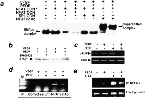 PEDF decreased NFAT binding to DNA consensus sequences and to c-FLIP promoter. (a) PEDF treatment lowered NFATc2 DNA-binding activity in stimulated ECs. HUVECs were treated for 1 h with indicated combinations of bFGF and PEDF, and nuclear extracts were examined by EMSA with NFAT consensus oligonucleotide (ODN). The same ODN (×10 excess, unlabeled) was used as a specific competitor and SP1 consensus ODN was used as a nonspecific competitor. Note the strong decrease in specific band intensity in the presence of PEDF, the supershift in the presence of NFATc2 antibody, and the decreased intensity of the supershifted band due to PEDF. (b–e) c-FLIP regulation by PEDF. VEGF- or bFGF-induced HUVECs were treated for 4 h (b and c) or 2 h (d and e) with PEDF alone or in combination with SP600125 and used for Western blotting for c-FLIP protein (b), for semi-quantitative RT-PCR for c-FLIP mRNA (c), or in chromatin ChIP assay (d and e). (b) Note the decreased c-FLIP protein due to PEDF, and the reversal by SP600125. (c) PEDF decreased c-FLIP mRNA in stimulated ECs. Three independent experiments were performed with similar results. (d and e) PEDF decreased NFAT binding to c-FLIP promoter in vivo. ChIP with NFATc2 antibody was performed on ECs activated with VEGF (d) or bFGF (e) treated with PEDF. Note the dramatic decrease in the PCR-amplified DNA fragment in the presence of PEDF.
