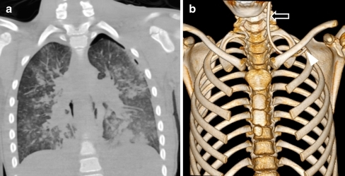 A 10-year-old boy who died in the hospital after a fall. a Postmortem CT shows a small pneumothorax, which was not found at autopsy. There is diffuse airway consolidation in keeping with postmortem pulmonary oedema. b Surface-shaded rendering of the thorax shows an incorrectly positioned left subclavian line with the tip of the line in the jugular vein (arrow). The line was cut and the distal end (arrowhead) was buried subcutaneously