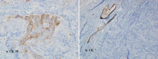 Immunohistochemically, the carcinoma cells, were focally positive for Cytokeratin (CK) 20 (a), but negative for CK 7 (b). This CK staining pattern suggested that the skin tumor was a metastasis from the previously resected rectal cancer.