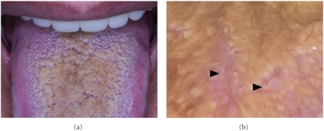 (a) Black hairy tongue on the dorsum of the tongue (Case 2). (b) Numerous brownish hair-like elongation of filiform papillae covering over whitish lingual papillae (▲) (Case 2).