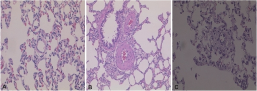 Hematoxylin-eosin staining of lung tissue. Monocrotaline (MCT) treatment thickened the muscular layer of the pulmonary arteriole at 42 days (B) compared to controls (A), and bosentan blocked this effect (C). Magnification: ×400.