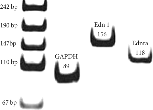 RT-PCR products for endothelin-1 and endothelin receptor A in rat lung tissue on day 5. The RT-PCR products from the transcripts of ET-1, endotelin receptor A and GAPDH were 156 bp, 118 bp and 89 bp. RT-PCR: reverse transcription-polymerase chain reaction, ET-1: Endothelin-1, GAPDH: glyceraldehyde 3-phosphate dehydrogenase.