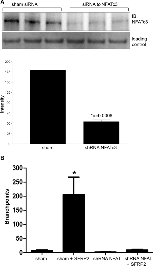 NFATc3 was required for SFRP2 stimulated tube formation.A) ShRNA to SFRP2 in 2H11 endothelial cells showed 69% reduction in NFATc3 level by Western blot. The loading control was TATA binding protein TBP antibodies (a nuclear marker). B) Sham transfected 2H11 cells increased tube formation in response to SFRP2 (7 nM) (n = 3 for all groups, p<0.01), which was not seen in shRNA to NFATc3 transfected cells. Full-length blots/gels are presented in Supplemental Figure S2B. Pictures of sham transfected cells and shRNA to NFATc3 transfected cells (both stimulated with SFRP2 (7 nM)) are in Figure S3.