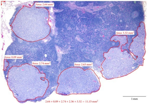 The screenshot of measurement of LN CSCA using Software Imaging System Olympus MicroSuite 5. Multiple foci of metastatic cancer were outlined. The size of individual cancer areas and the sum of all areas were calculated by the imaging software.