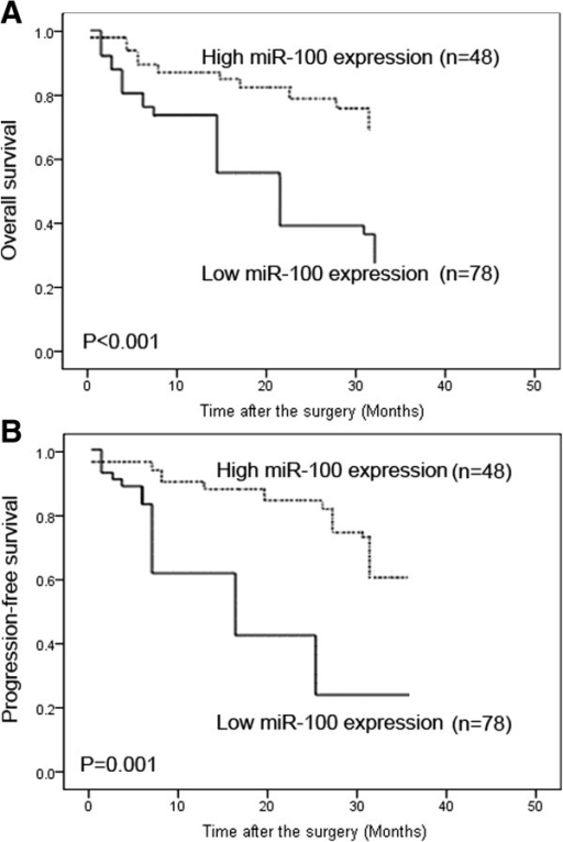 Kaplan-Meier survival curves for bladder cancer patients according to the expression of miR-100. (A) Progression-free survival (PFS); (B) overall survival (OS).
