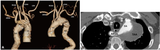 Thoracic aortic aneurysm with an aberrant right subclavian artery. A: three-dimension reconstructed computed tomography images. B: aberrant right subclavian artery between esophagus and trachea. AA: ascending aorta, DA: descending aorta, ARSA: aberrant right subclavian artery, RCCA: right common carotid artery, LCCA: left common carotid artery, LSA: left subclavian artery, TAA: thoracic aortic aneurysm, T: trachea, E: esophagus, SVC: superior vena cava.