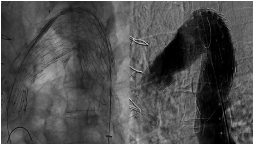 Thoracic aorta angiography after successful exclusion of thoracic aortic aneurysm by implantation of stent-grafts.