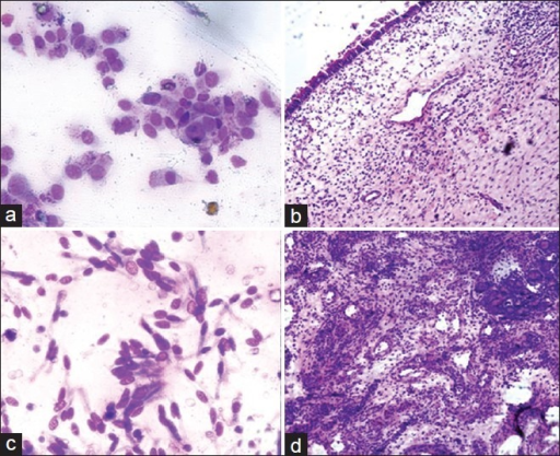 (a) Imprint from a nasal polyp showing clusters of columnar epithelial cells (Giemsa, ×400), (b) Polyp with pseudo stratified squamous epithelial lining with edematous stroma (Paraffin block; H and E, ×100); (c) Imprint from angiofibroma showing columnar epithelial cells, endothelial cells and fibroblasts (Giemsa, ×400); (d) Numerous thin walled blood vessels with fibrous stroma (Frozen section; H and E, ×100)