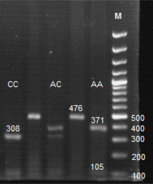 RFLP analysis of the XPD Lys751Gln polymorphism. Fragment sizes (bp) for each genotype with cut PCR product by PstI enzyme, along with the Marker (molecular size standard as M) are shown. Notably, the 63 bp on the gels used are not resolved.