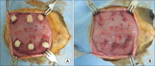 Operation process. Three incisions and pouches were made per side (right and left) at the abdominal muscle of athymic nude rats. (A) A picture of fixed demineralized bone matrix (DBM). (B) A picture of the sutured pouches after DBM implantation.