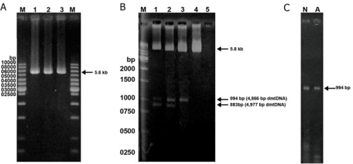 Detection of large-scale deletions of mtDNA from human washed sperm by long-range PCR method. A: The 5860 bpband represents the PCR product of normal mtDNA with primer pair LF3-HR4. Lane M is the 1-kb DNA size. B: Using theprimer sets LF3-HR4, the 5860 bp band was amplified from the wild-type mtDNA, the 994 bp and 883 bands were amplifiedfrom the 4866 bp and 4977 bp-deleted mtDNA, respectively. Spermatozoa in lanes 1-4 had the motility scores of 5.0, 20.0, 30.0,40.0% respectively. Lane 5 is the blank, in which the sperm DNA was omitted from the reaction mixture. Lane M is the1-kb DNAsize marker. C. The arrow indicates the band of 994 bp produced with primer pair LF3-HR4. Using a short extension time of 1minute at 72˚C, the longer DNA product from wild-type mtDNA could not be produced and only mtDNA with 4866 bp-deletionwas amplified. Lanes N and A normal and abnormal groups, respectively.