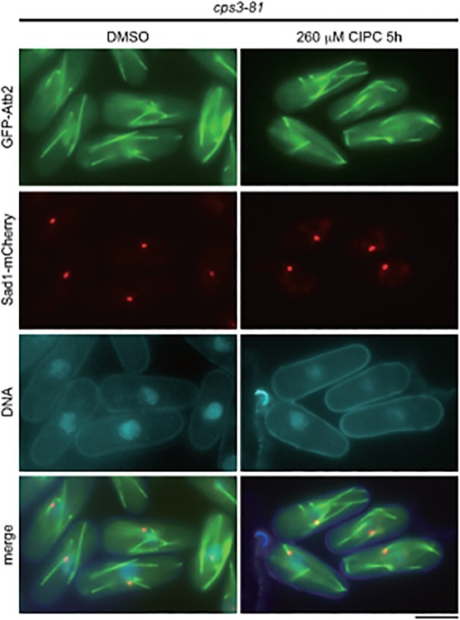 Microtubules in cps3–81 treated with CIPC.The cps3–81 mutant expressing GFP-Atb2 and Sad1-mCherry, as in Fig. 1A, was treated with DMSO (control) or 260 μM CIPC for 5 hours in EMM medium at 30°C. The bar indicates 5 μm.