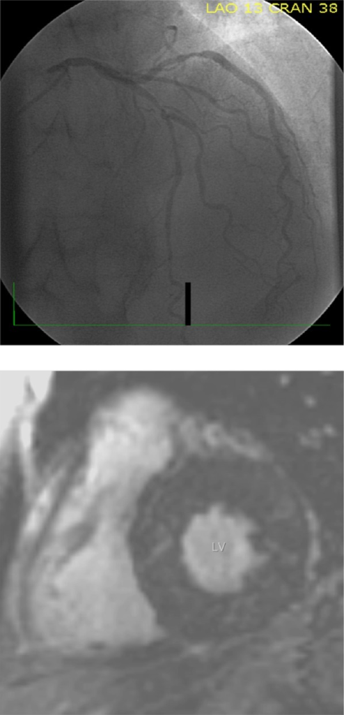Viable myocardium.Notes: Demonstration of viable myocardium in a 73-year-old male, as reflected by the absence of LGE at CMR (lower panel) despite significant CAD of LAD and CX arteries as shown by coronary angiography (upper panel).