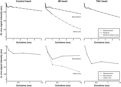 Ex vivo and in vivo signal intensity time curves.Representative ROI-based T2*-weighted signal intensity curves as a function of echo time (TE) for ex vivo (top row) and in vivo (bottom row) measurements in control hearts, remote tissue and infarct area of the post-MI hearts and the TAC hearts, together with the corresponding model fit (gray line, top row) and lines to guide the eye (bottom row). Signal intensities were normalized to the signal intensity at TE = 21 μs.
